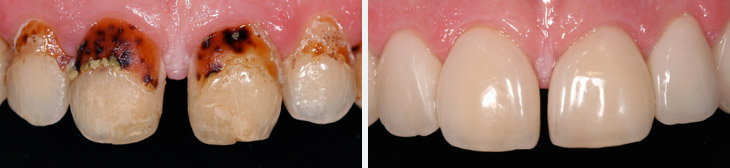 Treating caries